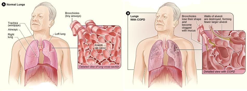Lungs with COPD